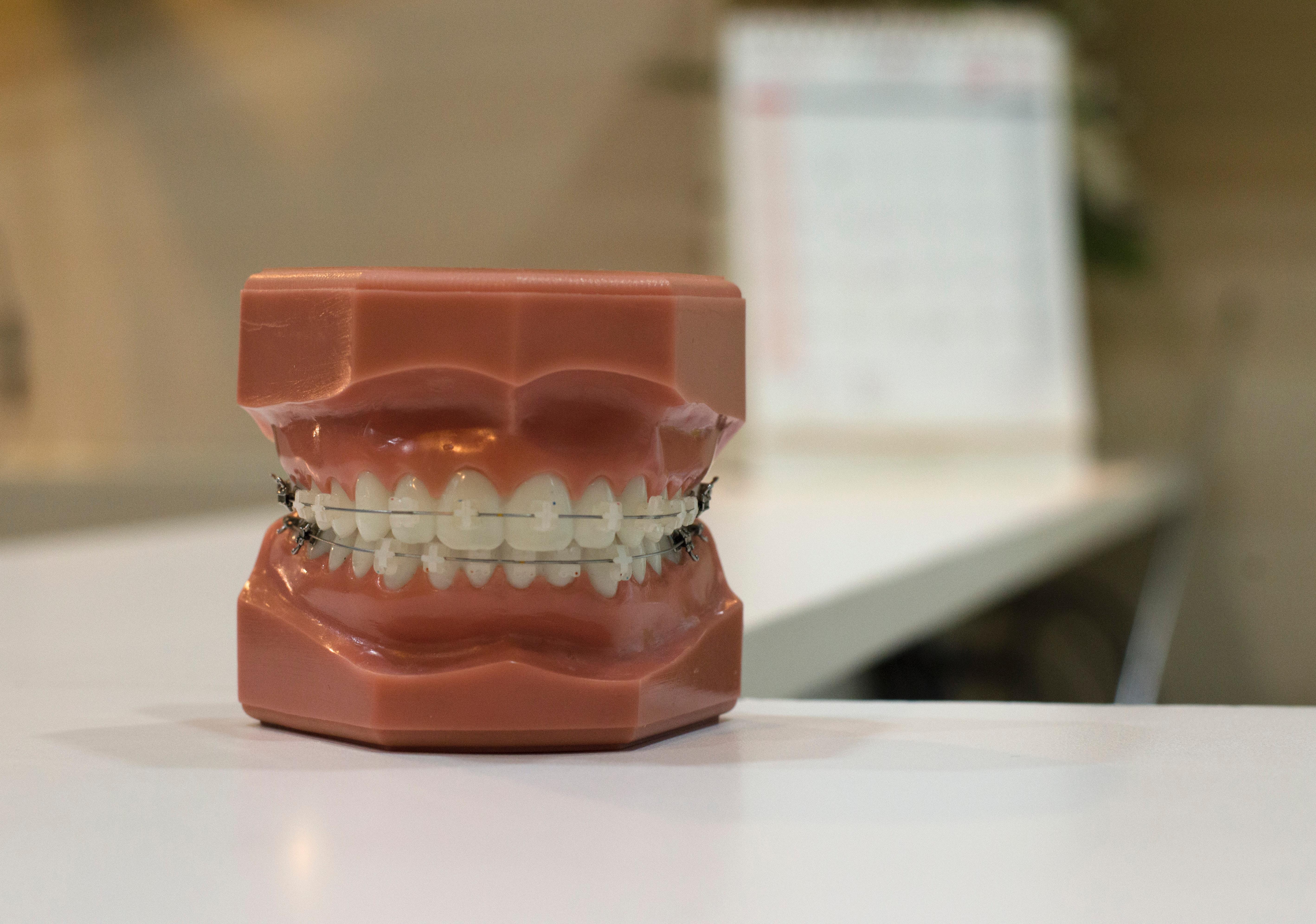 Procedimientos Estéticos Dentales