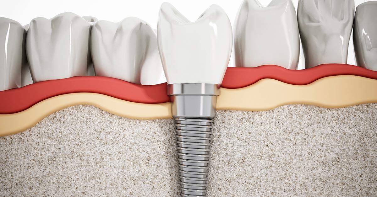 ¿Qué Debo Hacer Si Quiero Colocarme Un Implante Dental?