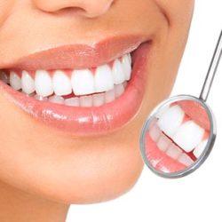 odontologia-minimamente-invasiva-2